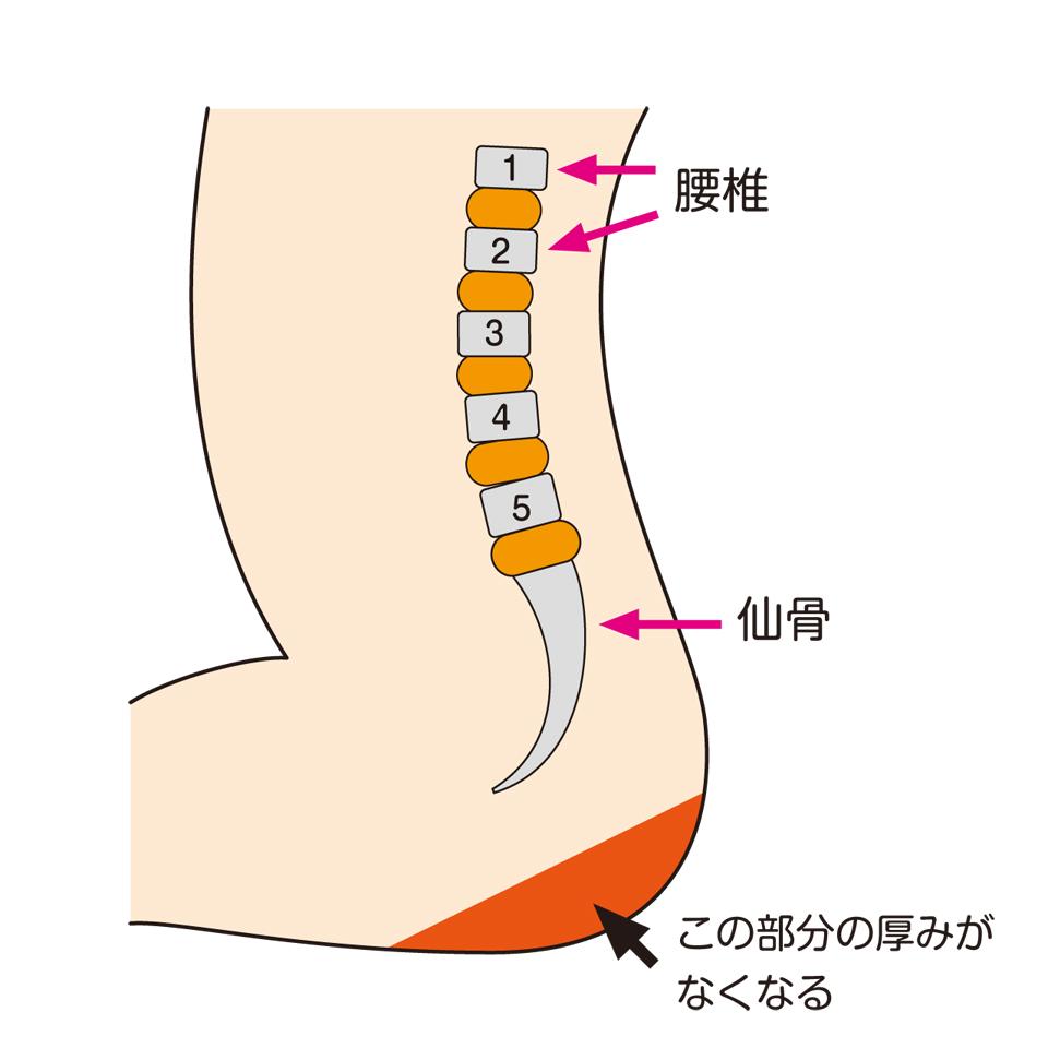 第五腰椎と仙骨