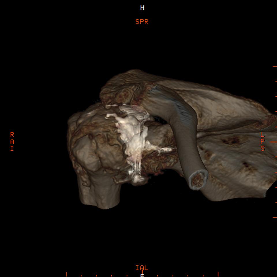 肩関節3DCT