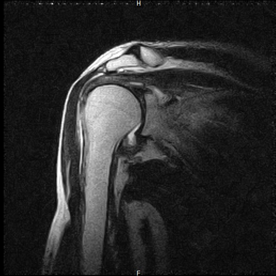 五十肩MRI