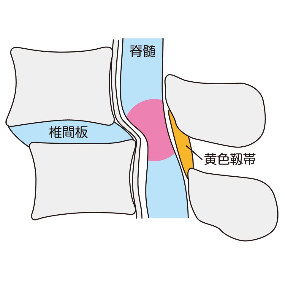 腰椎すべり症からくる脊柱管狭窄症