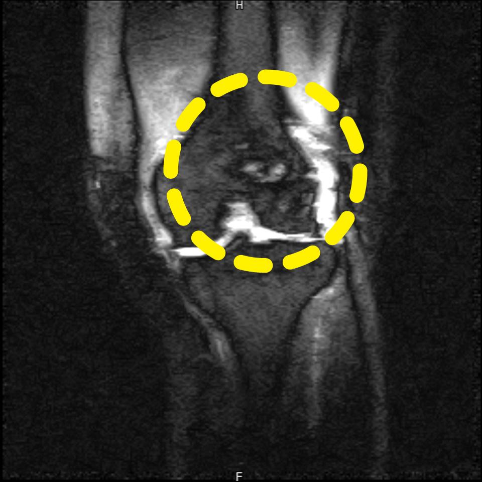 骨挫傷MRI