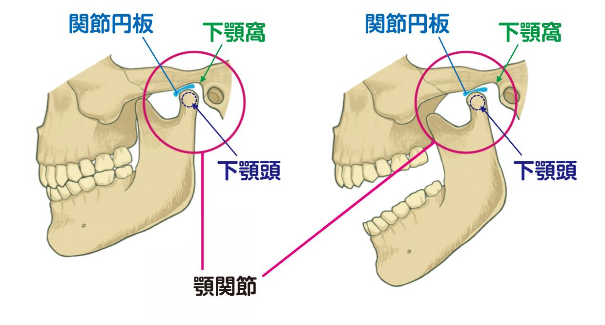 顎関節症・関節円板